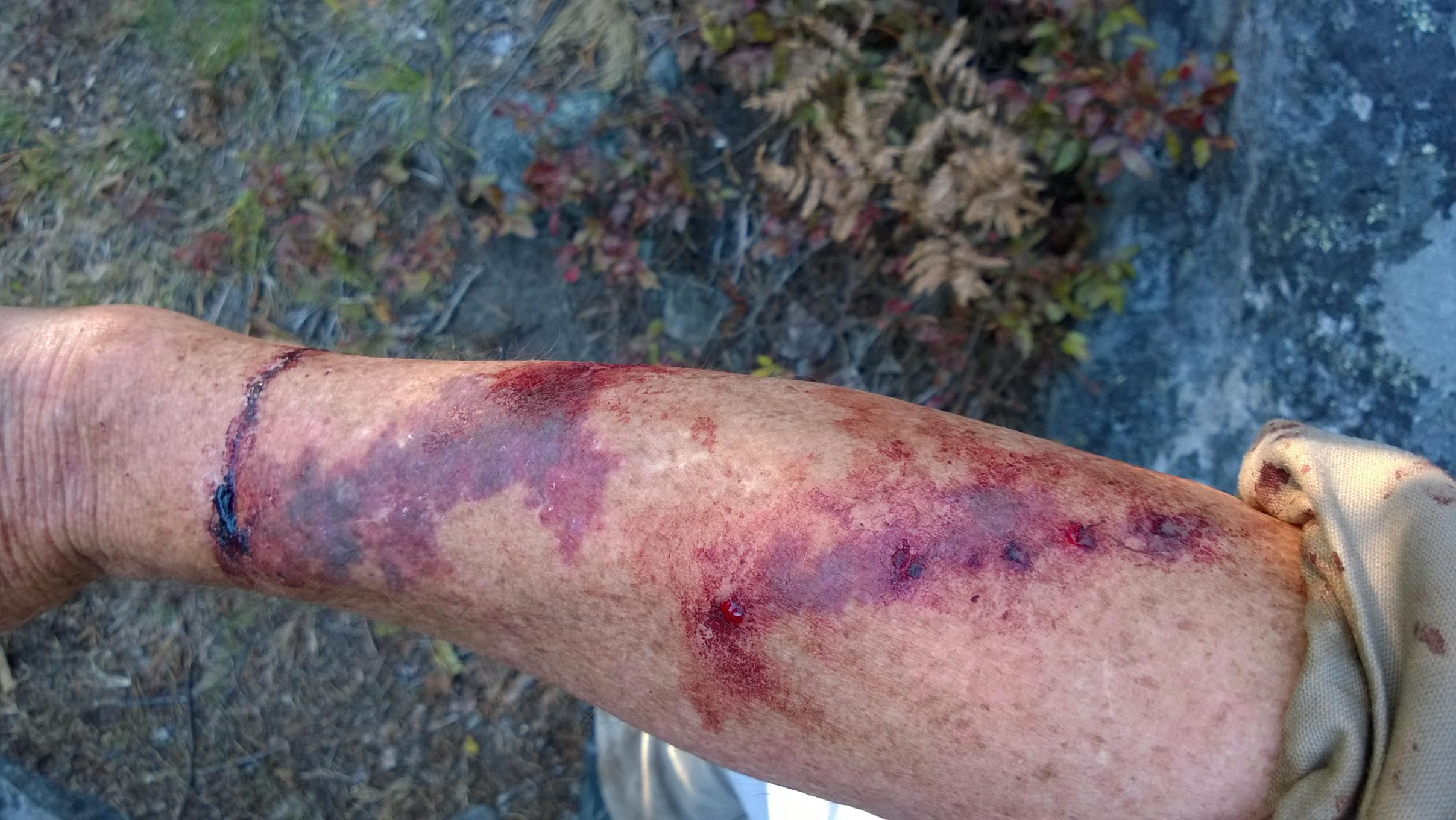 Boundary Waters skeeters are vicious.